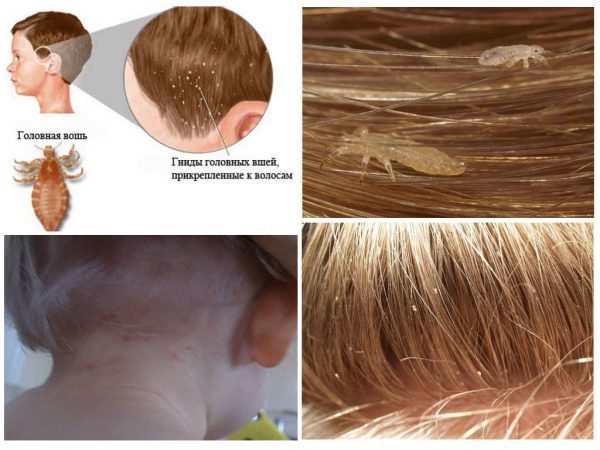 Паразиты на волосах у ребенка