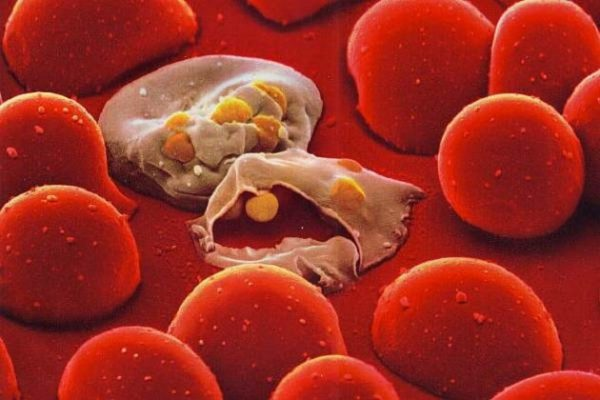 эритроциты после вторжения плазмодия