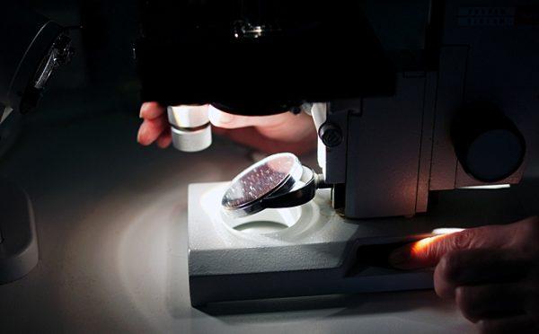 Исследование крови под микроскопом