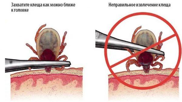 Извлечение клеща из кожи