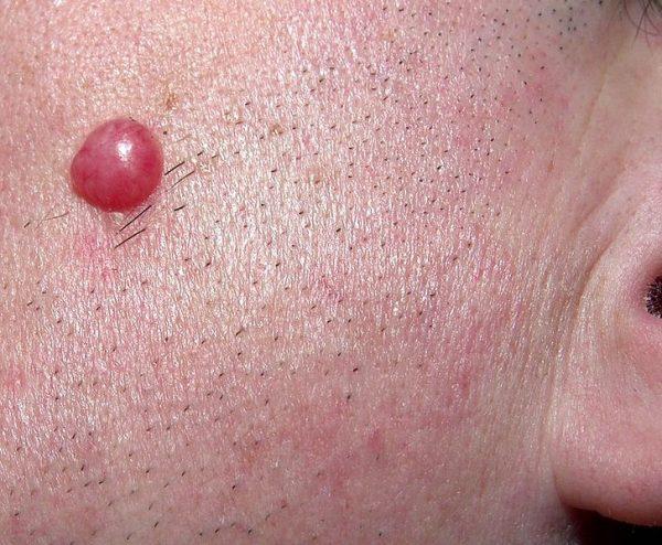 Лимфоцитома