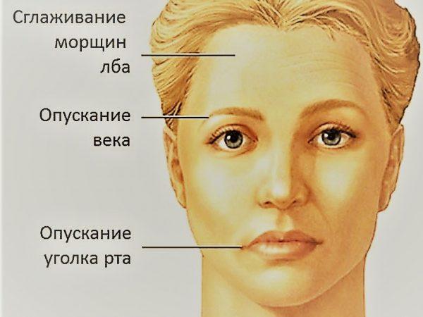 Поражение лицевого нерва