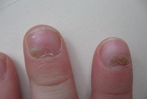 Поражение ногтевых пластин чесоточным зуднем