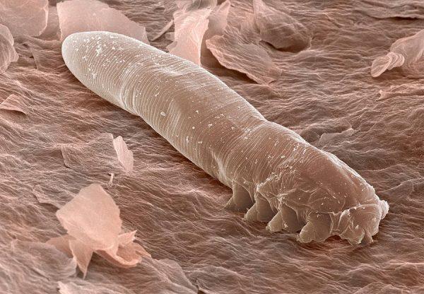 «Волосяные» клещи живут под кожей животного на протяжении всей жизни